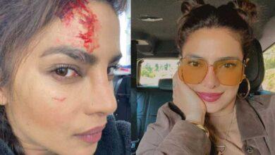 Photo of Priyanka injured during shooting